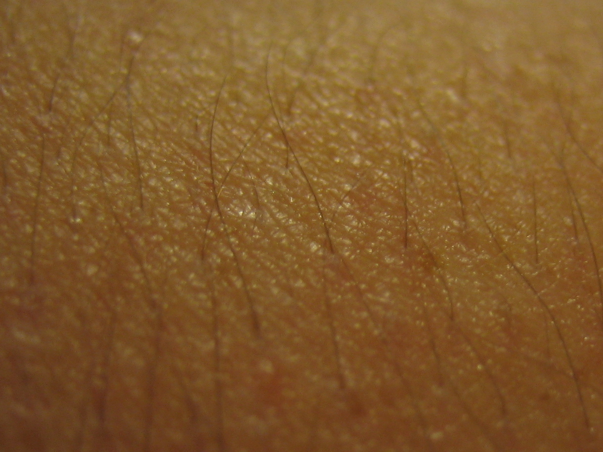Diseases that Cause Bumps On Skin