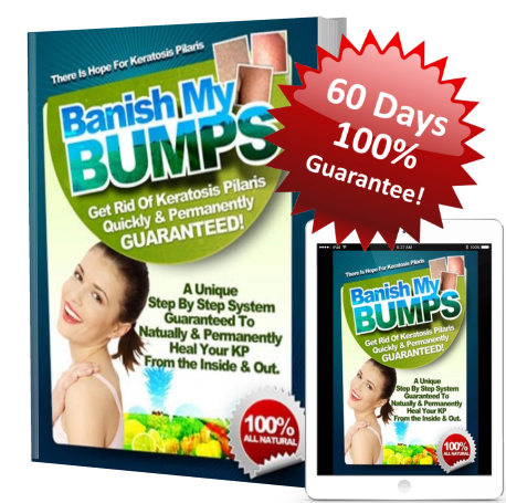 ebook and reader image of kp remedy program banish my bumps